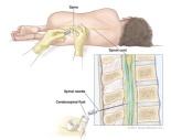 Lumbar-Puncture-Web